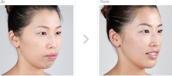 Как выглядит пациент до и после хирургического исправления прикуса