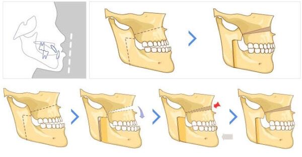 Схема хирургического исправления мезиального прикуса