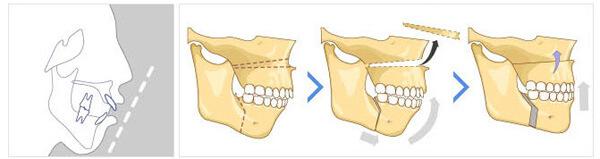 Схема хирургического исправления открытого прикуса
