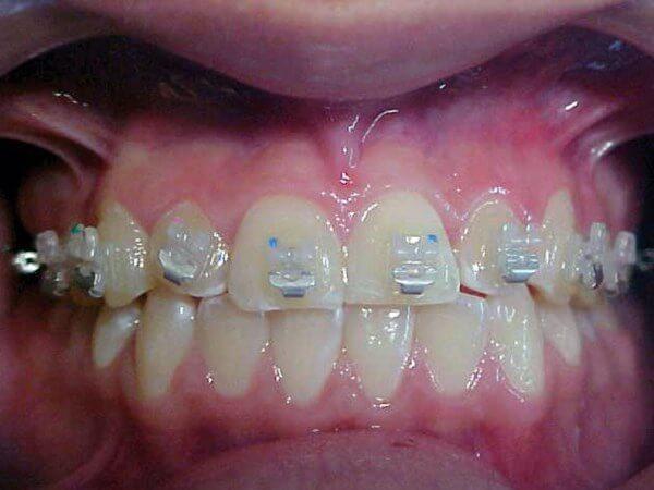 Как выглядят брекеты In-Ovation на зубах