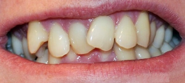 Причины появления кривых зубов