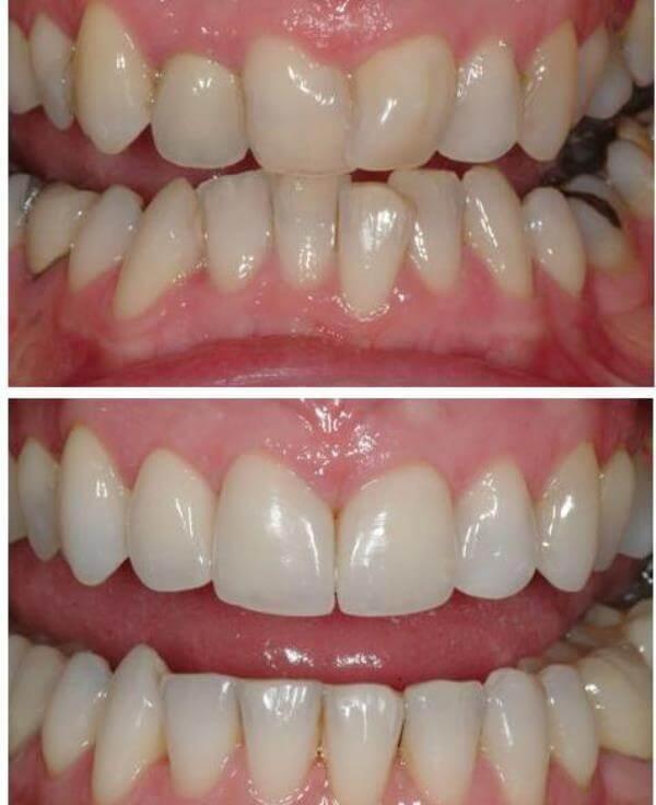 Как выглядят кривые зубы до и после лечения