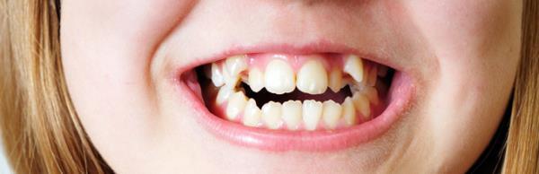 Какие методы используют для выравнивания кривых зубов