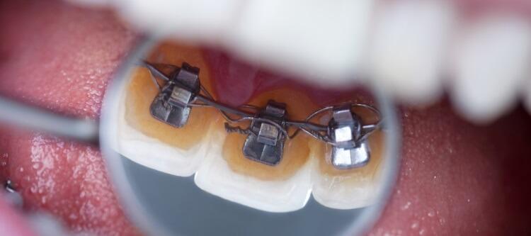 Сколько стоят брекеты на зубы, цена и качество различных видов