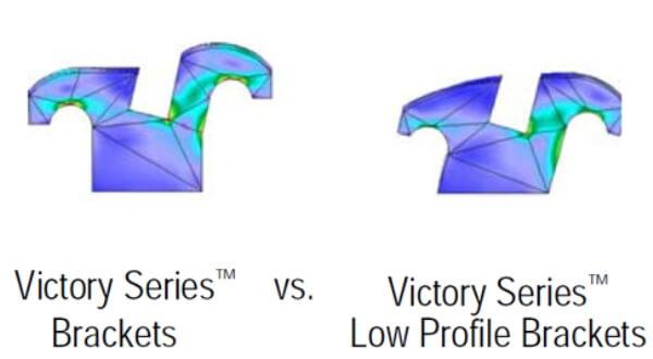 Какими бывают брекет системы Victory