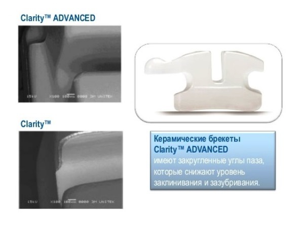 Какие технологии применяются при производстве брекетов Clarity