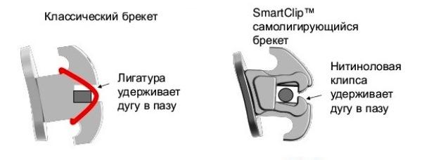 Конструктивные особенности брекетов Clarity