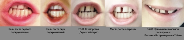 Зубной ряд до и после использования аппарата Дерихсвайлера