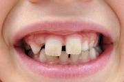 Что собой представляет диастема верхних зубов