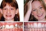 Фото дистального прикуса до и после коррекции брекетами