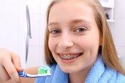 Как правильно чистить зубы с различными типами брекетов