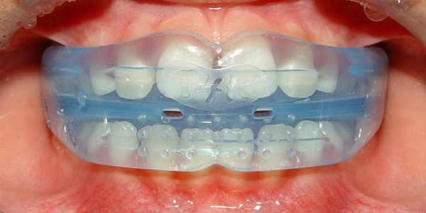 Как выглядит ортодонтический трейнер