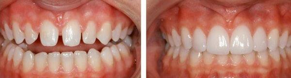 Зубной ряд с тремами до и после лечения