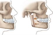 Последовательность исправления прикуса хирургическим путем