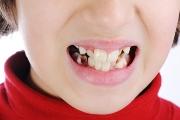 Как проявляется адентия зубов
