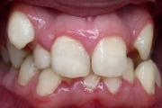 Когда возникает такая аномалия числа зубов как гипердонтия