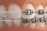 Сапфировые или металлические брекеты: на чем остановить выбор