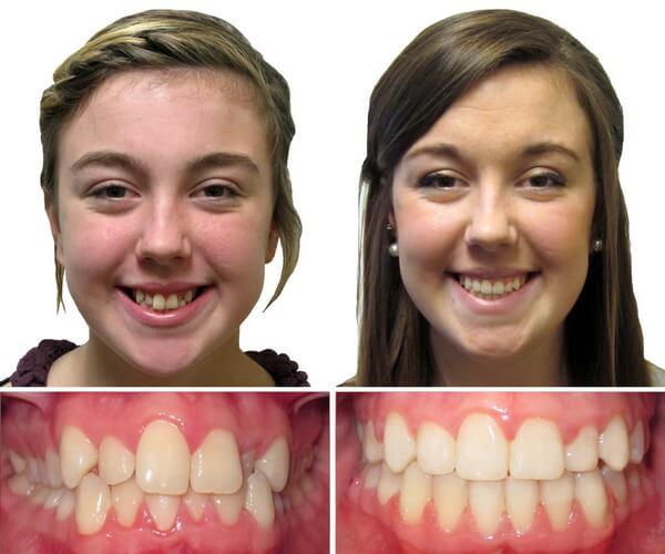 Внешние проявления сужения зубных рядов