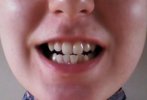 Формы сужения зубных рядов
