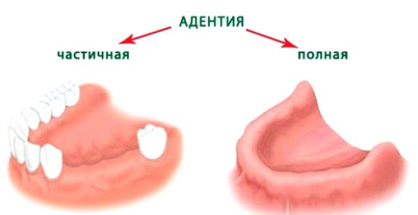 Разновидности адентии