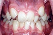 Симптомы дистопии зуба