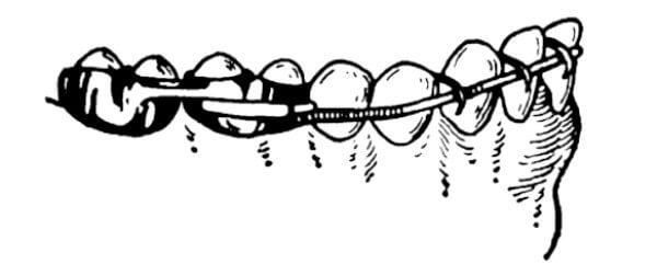 Как происходит фиксация дуги Энгля