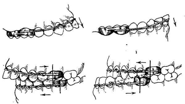Положение дуги Энгля межчелюстного действия на зубах