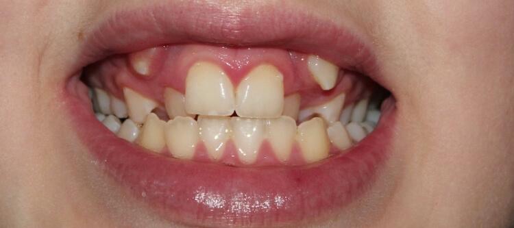 Как проявляется гипердонтия