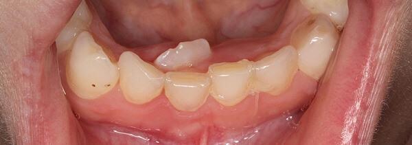 Можно ли диагностировать гипердонтию самостоятельно