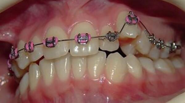 Ортодонтическое лечение гипердонтии