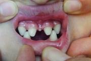 Что характерно для гиподентии молочных зубов