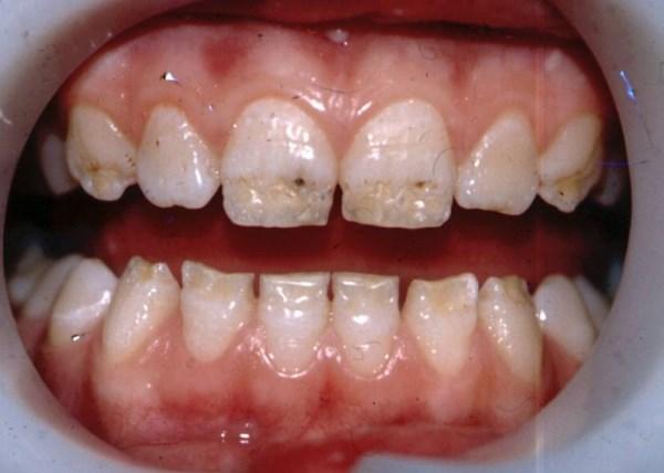 Клиническая картина гипоплазии зубной эмали
