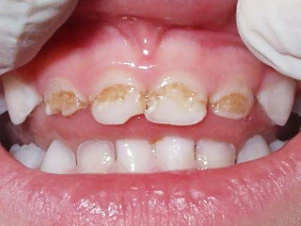 Виды гипоплазии зубной эмали