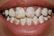 Способы лечения гипоплазии зубной эмали
