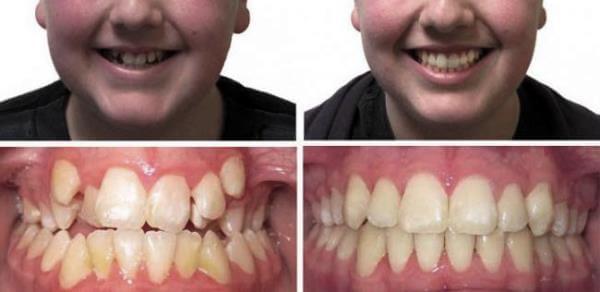 Результаты лечения конических и шиповидных зубов