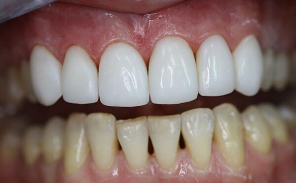 Способы лечения конических зубов