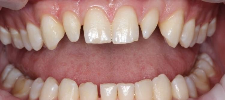 Как лечат конические или шиловидные зубы