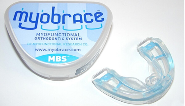Конструктивные особенности трейнера Myobrace