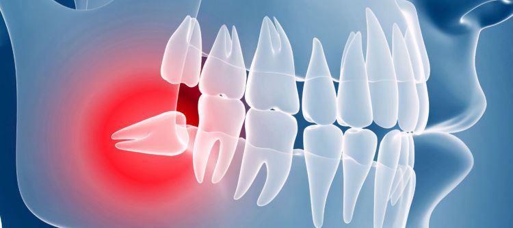 Ретинированные зубы: что это значит