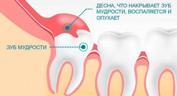 Локализация ретинированных зубов