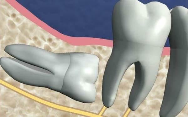 Почему появляются ретинированные зубы