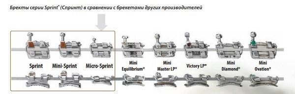 Чем отличаются брекеты Спринт от аналогов