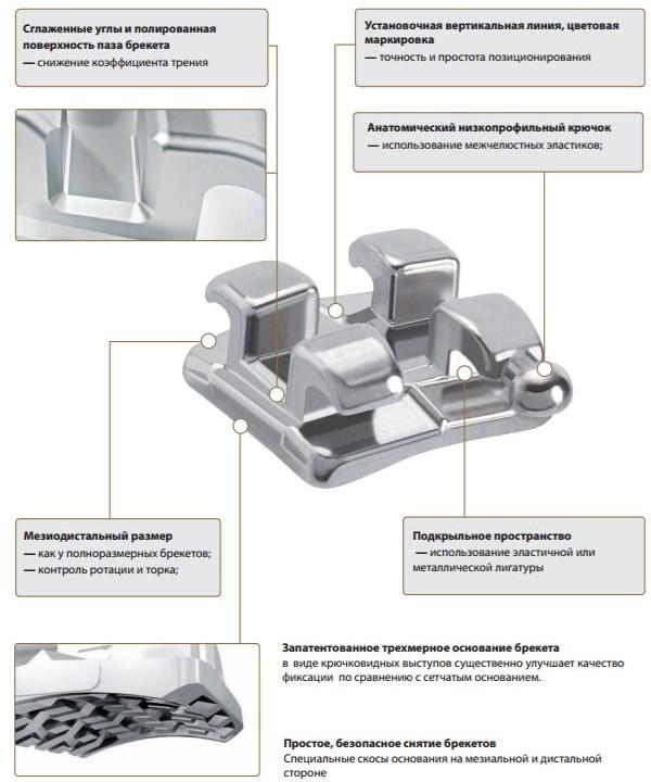 Основные характеристики брекетов Спринт
