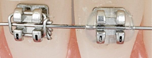 Как выглядят брекеты Спринт на зубах