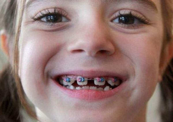 Ортодонтическое лечение гиподентии