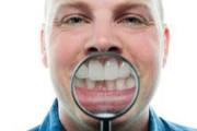 Симптомы макродентии зубов
