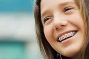 Сколько стоят металлические брекеты на обе челюсти в разных регионах