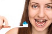 Какой пастой рекомендуют чистить зубы с брекетами