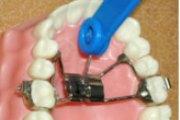 Методы расширения зубного ряда у взрослых