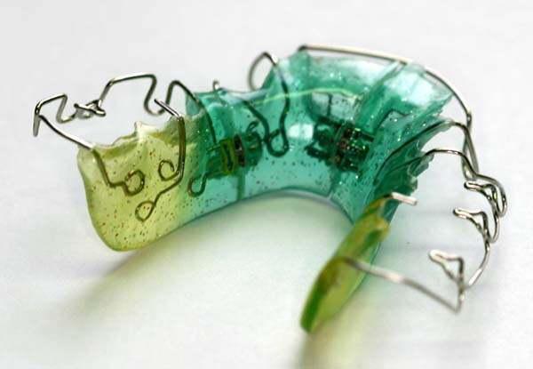 Использование дополнительных элементов для расширения зубного ряда
